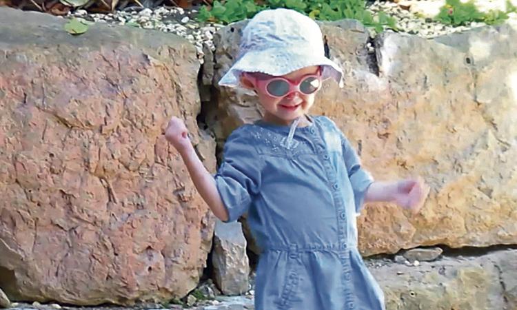 El cas de l'Alexandra, una nena sesrovirenca amb progèria